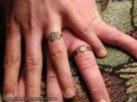 拔不掉的戒指