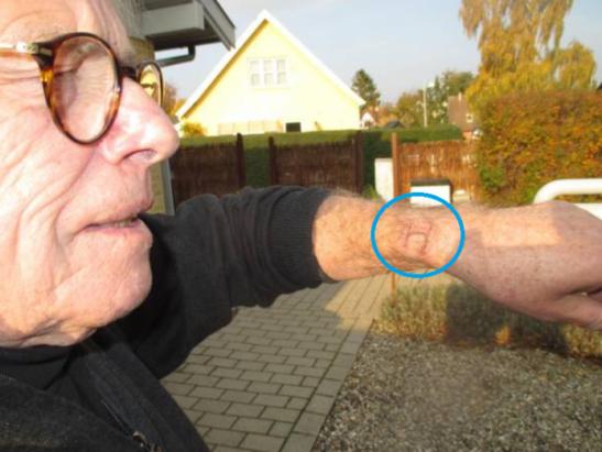 今日新聞淺談:Apple Watch 又傳燙傷,這是果粉的徽章啊